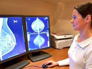 US Task Force: Ashkenazi Jewish Women Should Test For Breast Cancer Genes