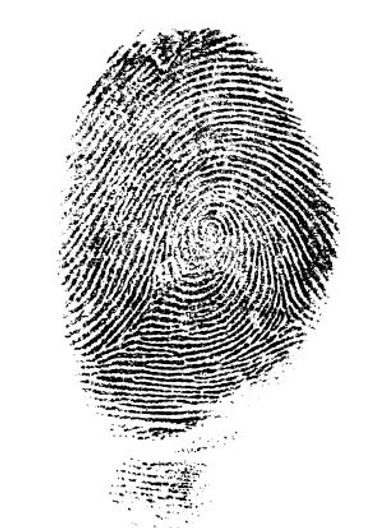 Why Are Some People Born Without Fingerprints? – The Forward